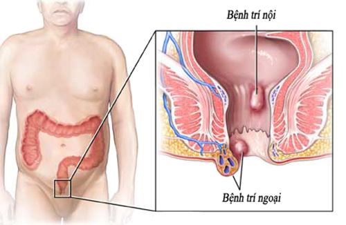 Nguyên nhân và cách điều trị bệnh trĩ ngoại