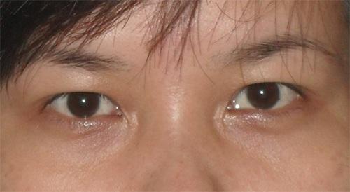 Thở dài trước đôi mắt sụp mí già nua trên gương mặt
