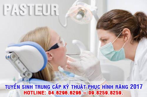 Trung cấp kỹ thuật phục hình răng Hà Nội tuyển sinh năm 2017