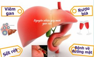 Cách giảm men gan cao không cần dùng thuốc
