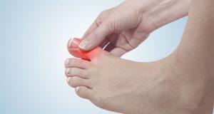Hướng dẫn khắc phục bệnh cước tay chân vào mùa đông hiệu quả