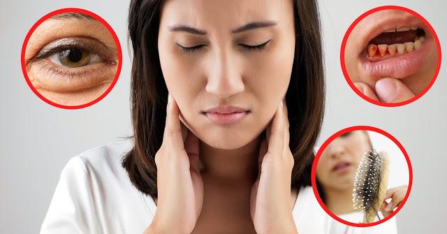 Cơ thể thiếu vitamin A có thể gây ra nhiều bệnh nguy hiểm