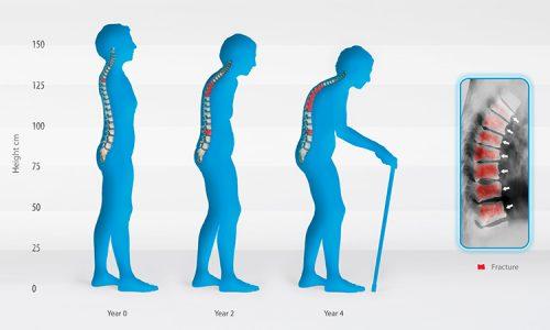 Làm sao để nhận biết được Bệnh loãng xương?