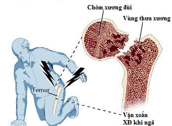 Người mắc bệnh loãng xương dễ bị gãy xương dù chỉ bị tác động nhẹ