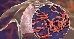 Hiểu hơn về bệnh Lao phổi dưới góc nhìn của các Trình Dược Viên