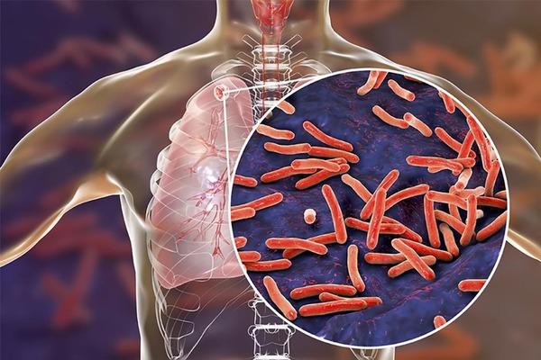 Lao phổi là do vi khuẩn Mycobacterium tuberculosis gây ra