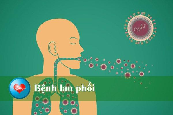 Điều trị và phòng ngừa bệnh lao phổi