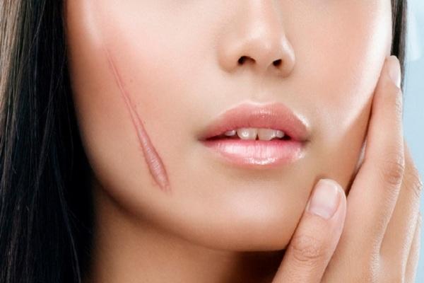 Những vết sẹo gây mất thẩm mỹ